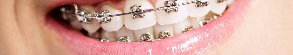 ortodonzia studio dentistico Tosco Milano
