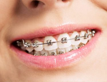 servizio di ortodonzia studio dentistico Tosco Milano