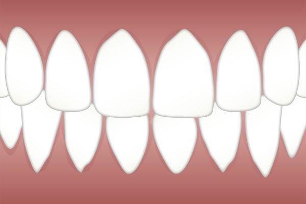 parodontite causa ipertensione